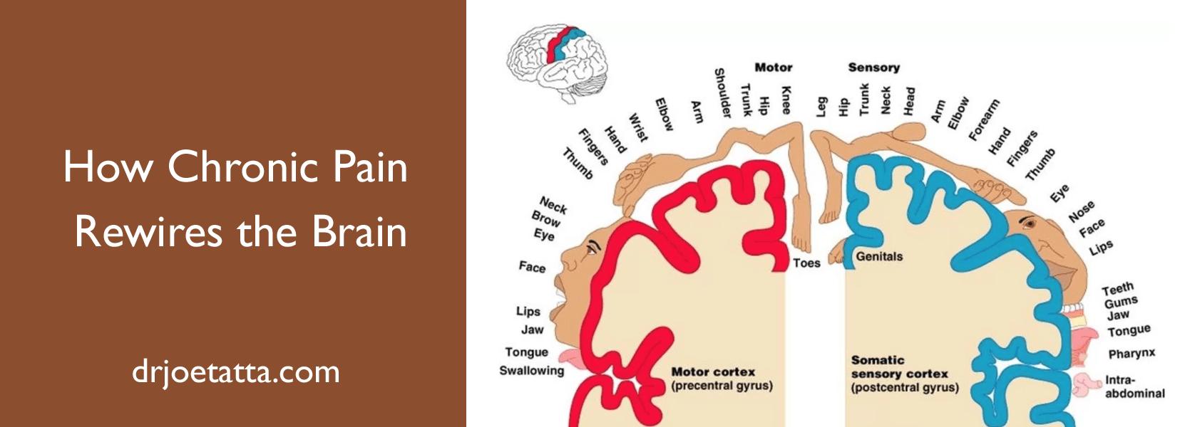 How Chronic Pain Rewires the Brain